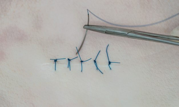 How to Suture a Wound – Can You DIY It If You're Not a Surgeon?